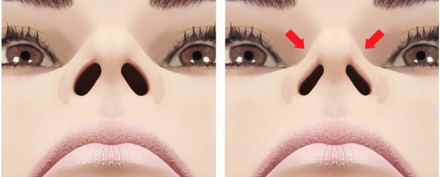 ALF treats Collapsed Nasal Valve
